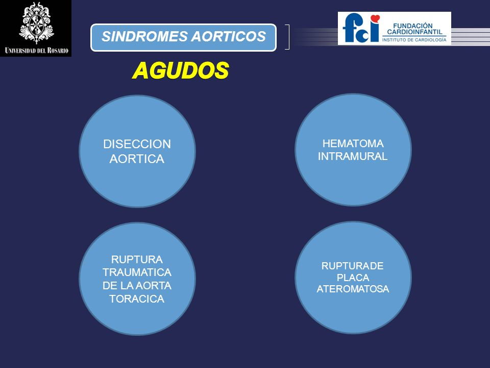 AGUDOS SINDROMES AORTICOS DISECCION AORTICA HEMATOMA INTRAMURAL