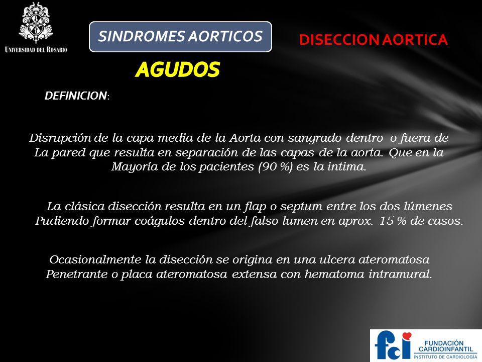 AGUDOS SINDROMES AORTICOS DISECCION AORTICA DEFINICION: