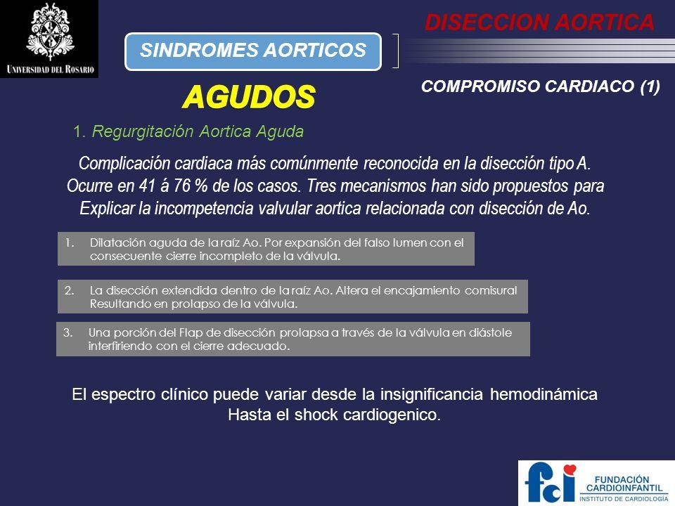 AGUDOS DISECCION AORTICA SINDROMES AORTICOS