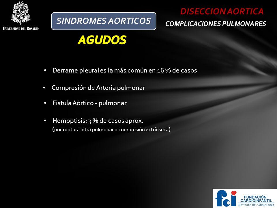 AGUDOS DISECCION AORTICA SINDROMES AORTICOS COMPLICACIONES PULMONARES