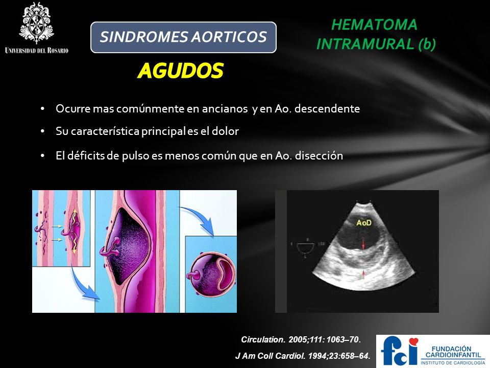 AGUDOS HEMATOMA SINDROMES AORTICOS INTRAMURAL (b)