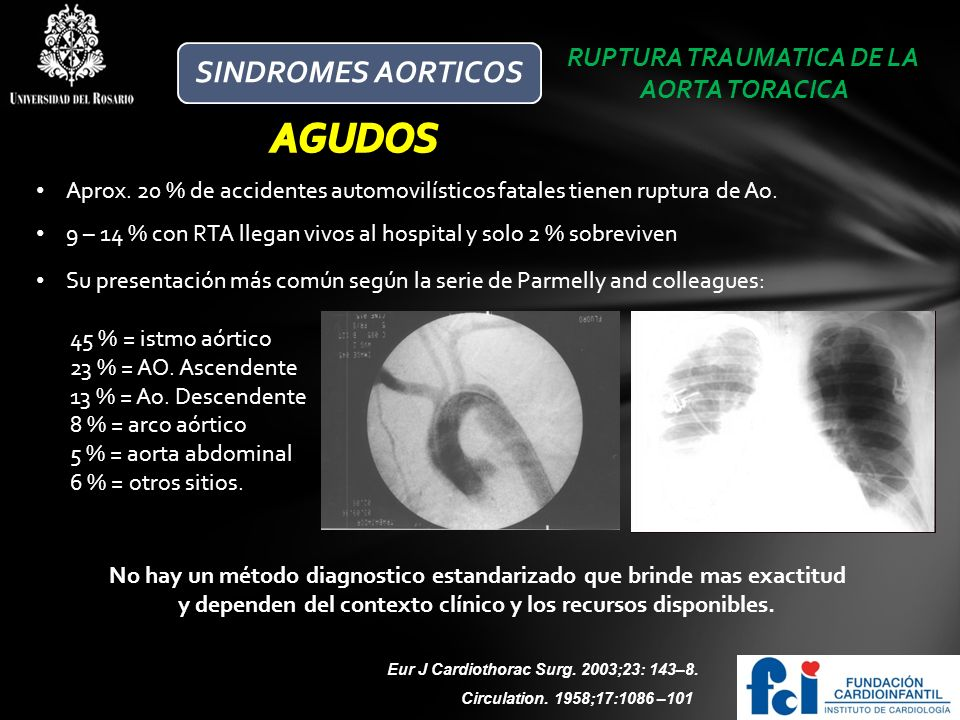 AGUDOS SINDROMES AORTICOS RUPTURA TRAUMATICA DE LA AORTA TORACICA