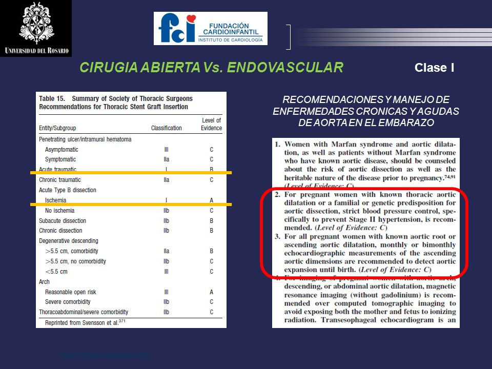 CIRUGIA ABIERTA Vs. ENDOVASCULAR