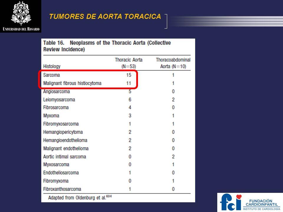 TUMORES DE AORTA TORACICA