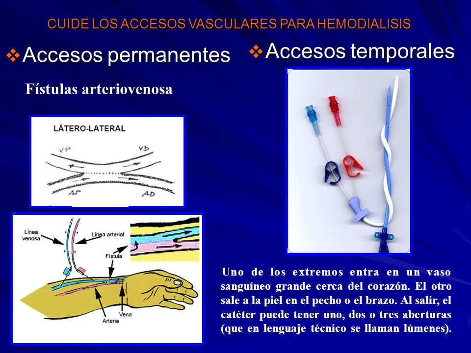 Accesos temporales Accesos permanentes Fístulas arteriovenosa