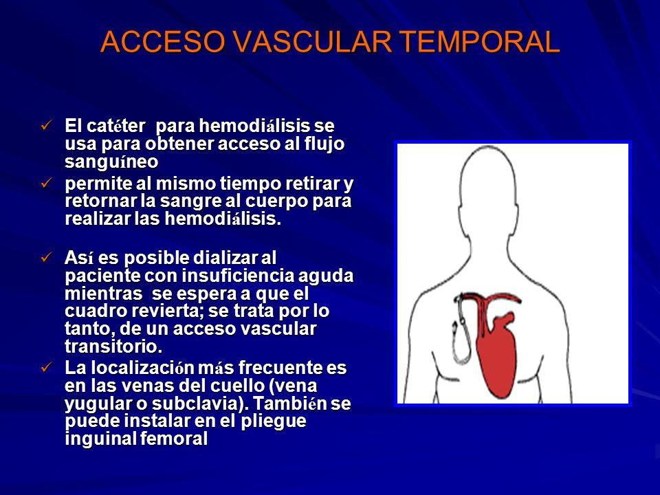 ACCESO VASCULAR TEMPORAL