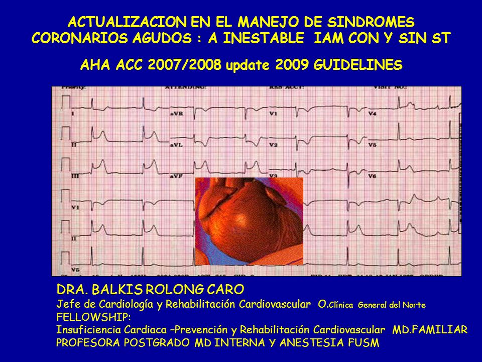 ACTUALIZACION EN EL MANEJO DE SINDROMES CORONARIOS AGUDOS : A INESTABLE IAM CON Y SIN ST AHA ACC 2007/2008 update 2009 GUIDELINES