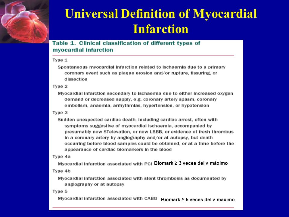 Universal Definition of Myocardial Infarction