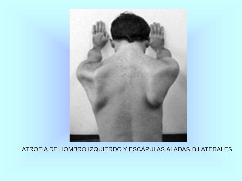 ATROFIA DE HOMBRO IZQUIERDO Y ESCÁPULAS ALADAS BILATERALES