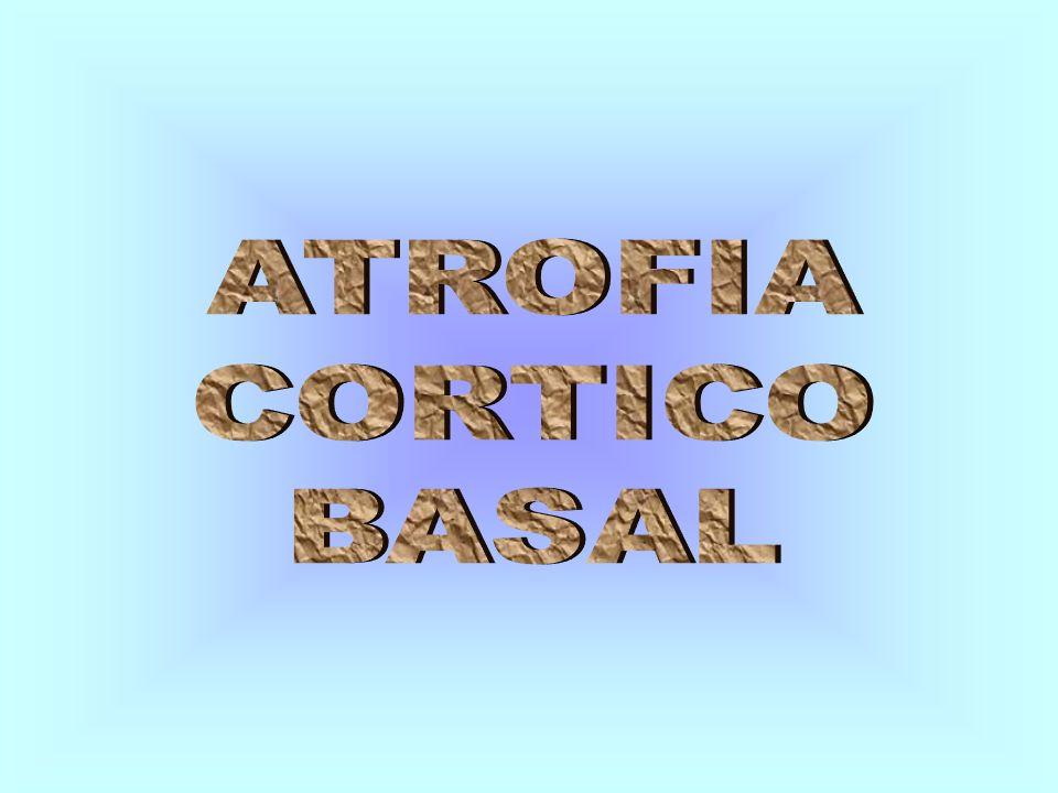 ATROFIA CORTICO BASAL