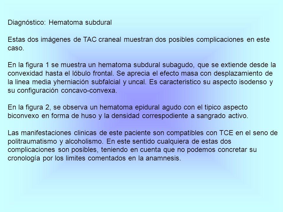 Diagnóstico: Hematoma subdural