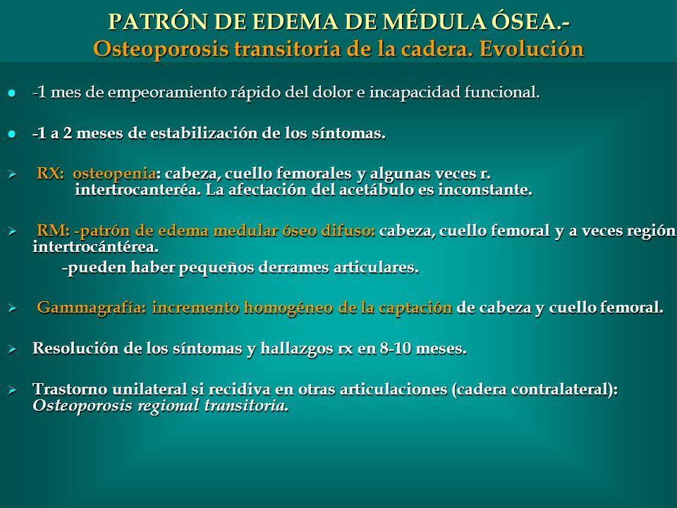 PATRÓN DE EDEMA DE MÉDULA ÓSEA.- Osteoporosis transitoria de la cadera. Evolución
