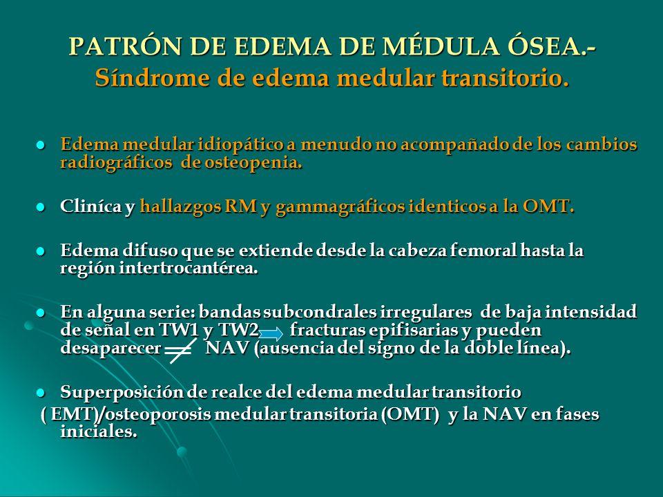 PATRÓN DE EDEMA DE MÉDULA ÓSEA.- Síndrome de edema medular transitorio.