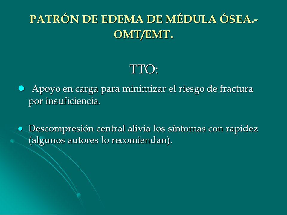 PATRÓN DE EDEMA DE MÉDULA ÓSEA.- OMT/EMT.