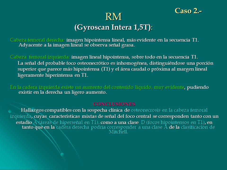 RM (Gyroscan Intera 1,5T):
