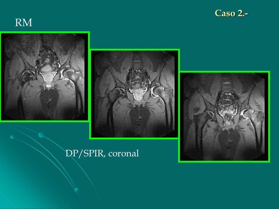 Caso 2.- RM DP/SPIR, coronal