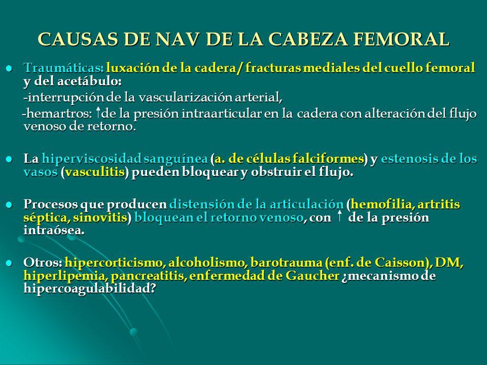 CAUSAS DE NAV DE LA CABEZA FEMORAL