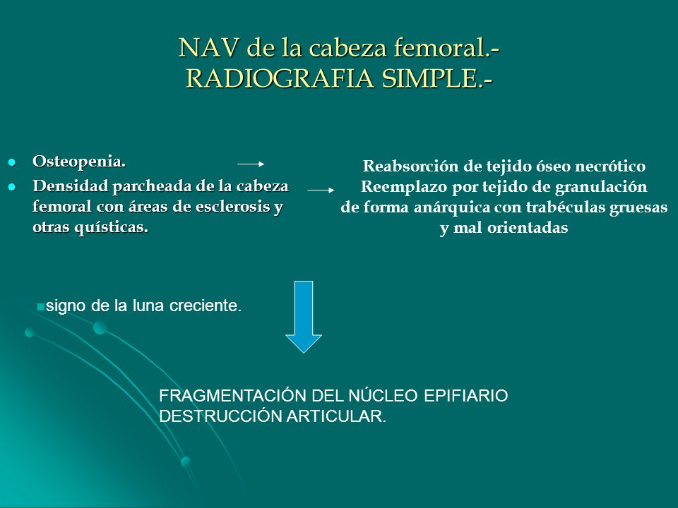 NAV de la cabeza femoral.- RADIOGRAFIA SIMPLE.-