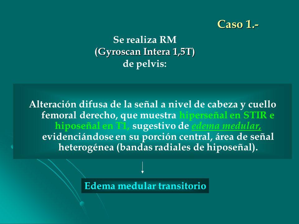 Caso 1.- Se realiza RM (Gyroscan Intera 1,5T) de pelvis: