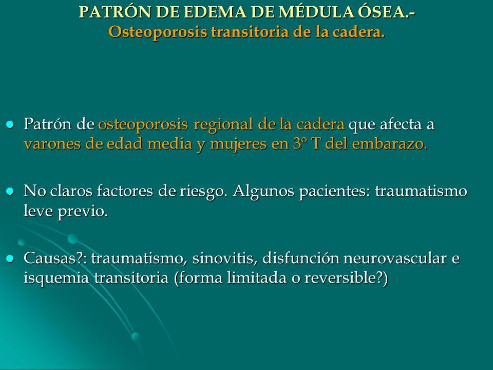 PATRÓN DE EDEMA DE MÉDULA ÓSEA.- Osteoporosis transitoria de la cadera.