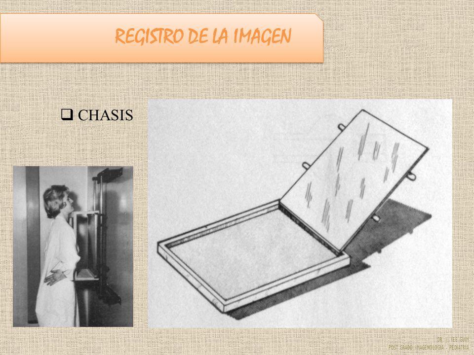 REGISTRO DE LA IMAGEN CHASIS