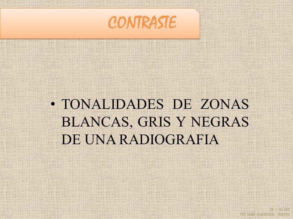CONTRASTE TONALIDADES DE ZONAS BLANCAS, GRIS Y NEGRAS DE UNA RADIOGRAFIA