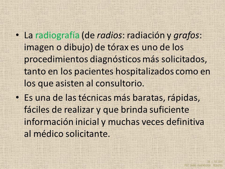 La radiografía (de radios: radiación y grafos: imagen o dibujo) de tórax es uno de los procedimientos diagnósticos más solicitados, tanto en los pacientes hospitalizados como en los que asisten al consultorio.