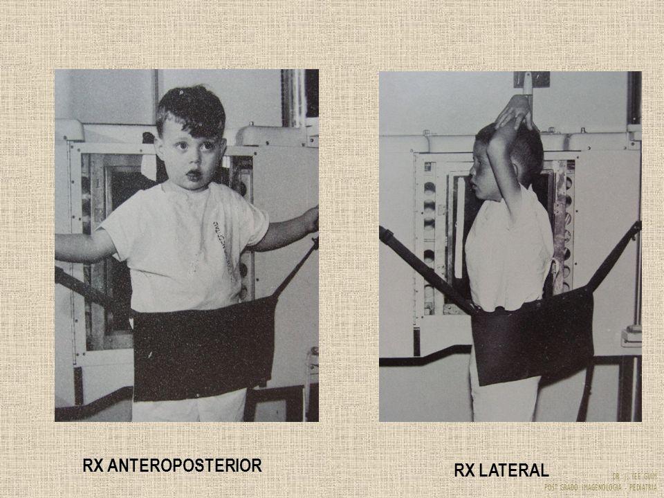 RX ANTEROPOSTERIOR RX LATERAL