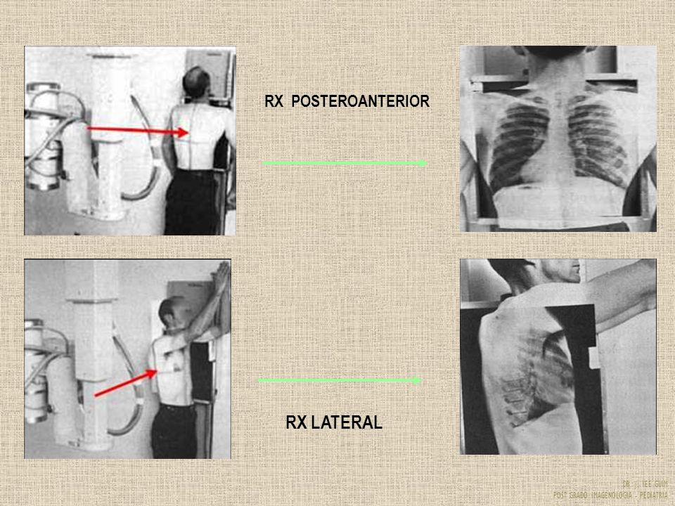 RX POSTEROANTERIOR RX LATERAL