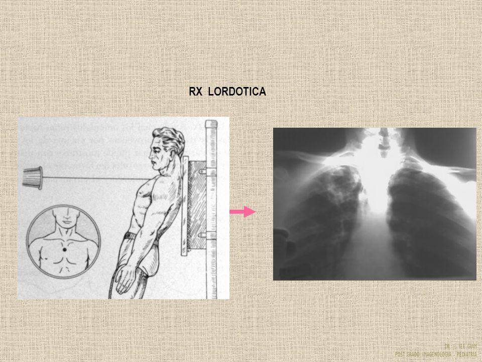 RX LORDOTICA