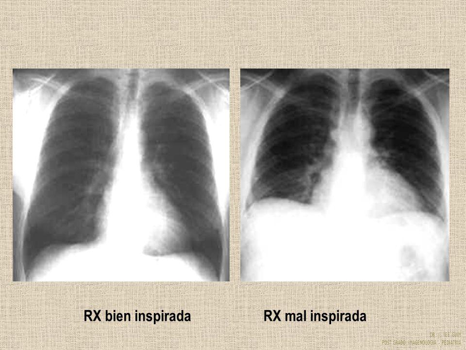 RX bien inspirada RX mal inspirada