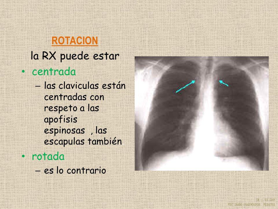 ROTACION la RX puede estar centrada rotada