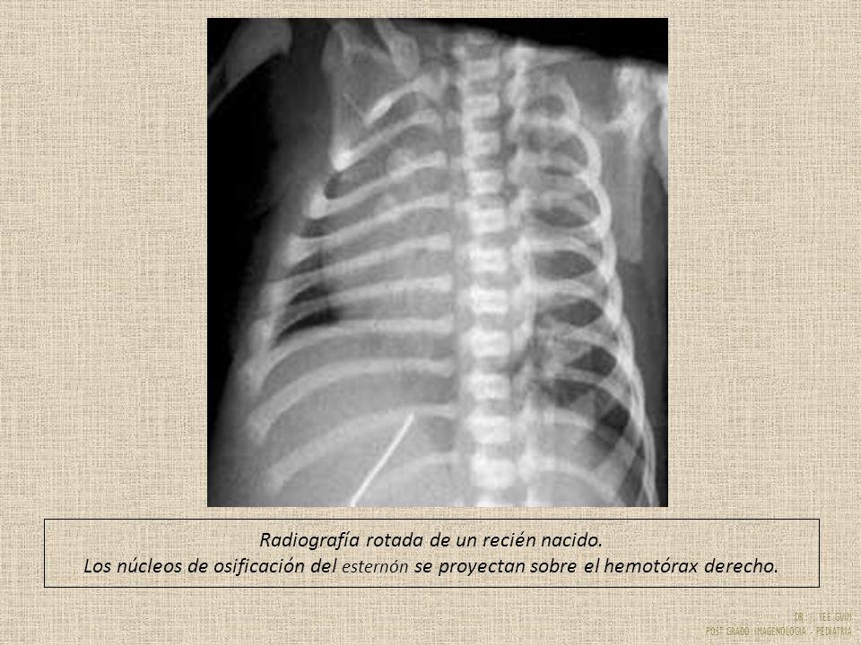 Radiografía rotada de un recién nacido