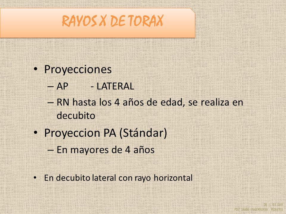 RAYOS X DE TORAX Proyecciones Proyeccion PA (Stándar) AP - LATERAL