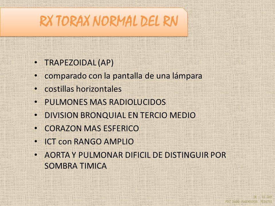 RX TORAX NORMAL DEL RN TRAPEZOIDAL (AP)