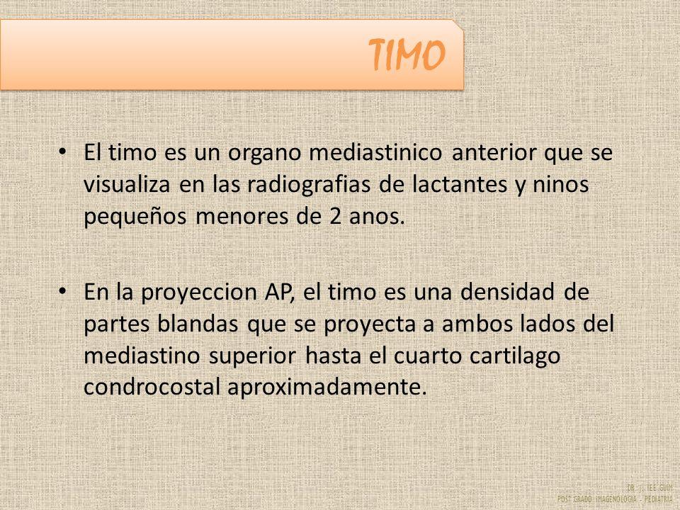 TIMO El timo es un organo mediastinico anterior que se visualiza en las radiografias de lactantes y ninos pequeños menores de 2 anos.