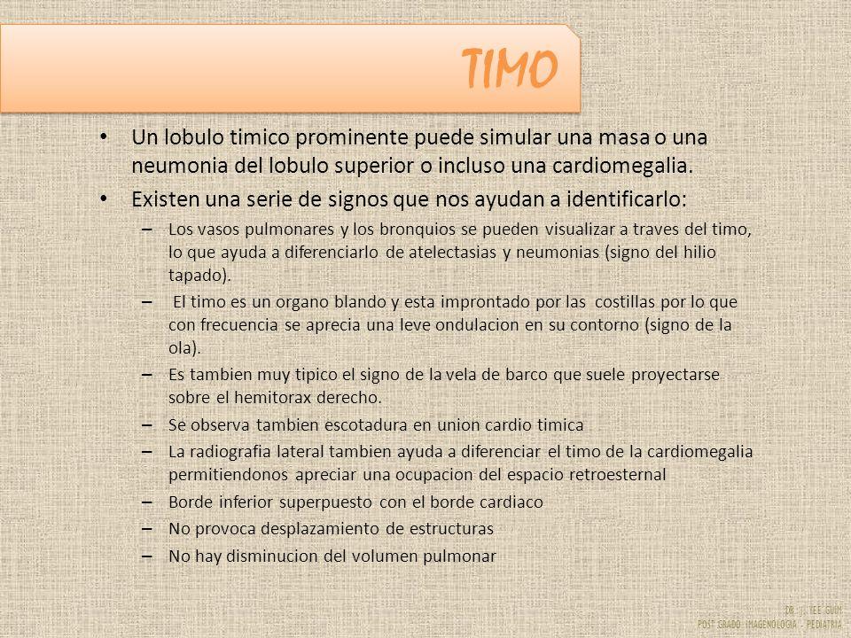 TIMO Un lobulo timico prominente puede simular una masa o una neumonia del lobulo superior o incluso una cardiomegalia.