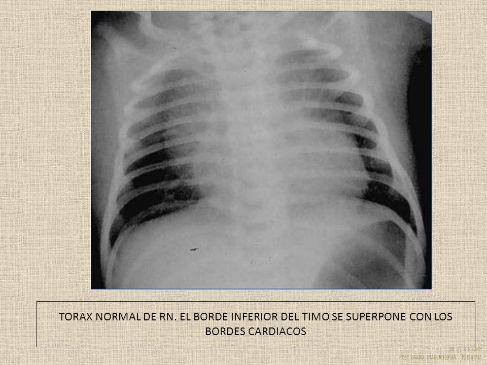 TORAX NORMAL DE RN. EL BORDE INFERIOR DEL TIMO SE SUPERPONE CON LOS BORDES CARDIACOS