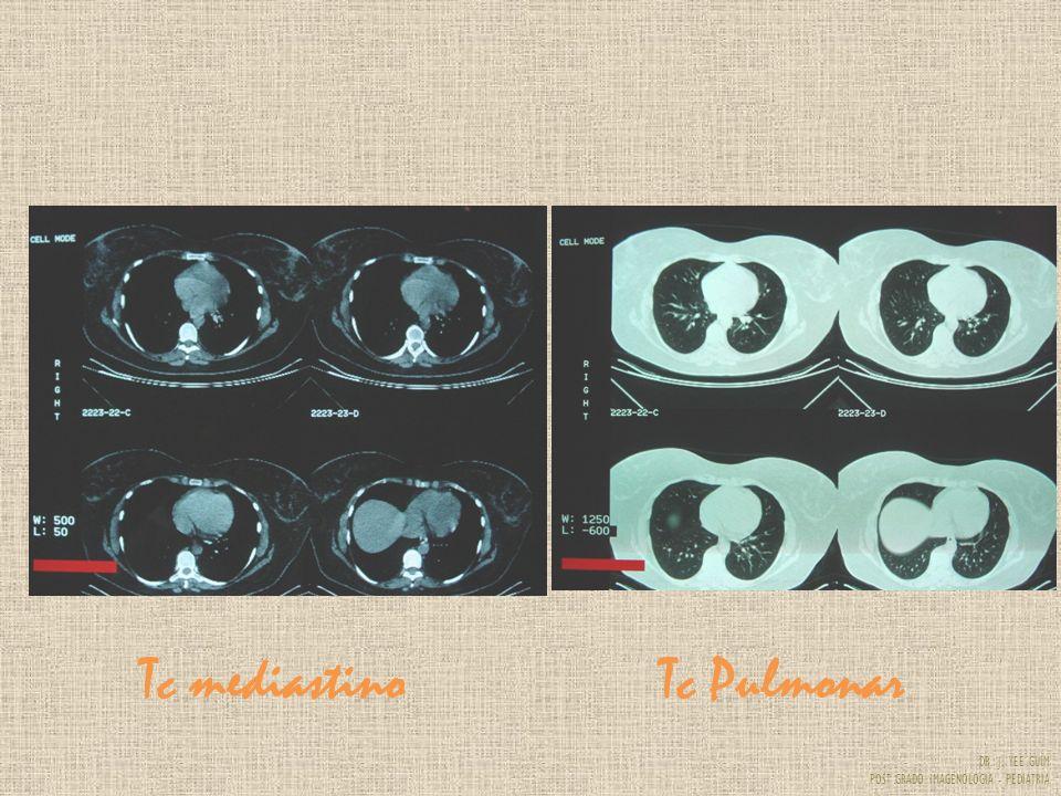 Tc mediastino Tc Pulmonar