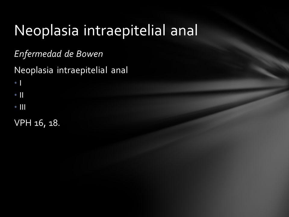 Neoplasia intraepitelial anal