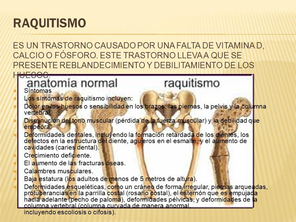 Raquitismo Es un trastorno causado por una falta de vitamina D, calcio o fósforo. Este trastorno lleva a que se presente reblandecimiento y debilitamiento de los huesos.