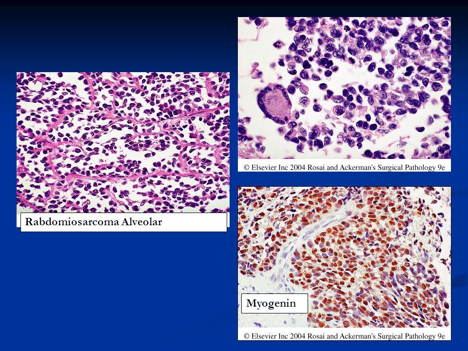 Rabdomiosarcoma Alveolar
