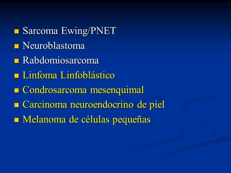 Sarcoma Ewing/PNETNeuroblastoma. Rabdomiosarcoma. Linfoma Linfoblástico. Condrosarcoma mesenquimal.