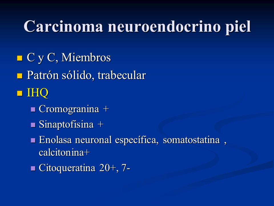 Carcinoma neuroendocrino piel