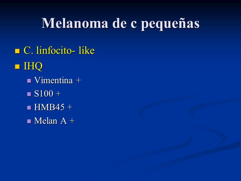 Melanoma de c pequeñas C. linfocito- like IHQ Vimentina + S100 +