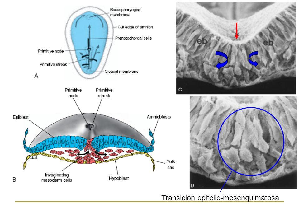 Transición epitelio-mesenquimatosa