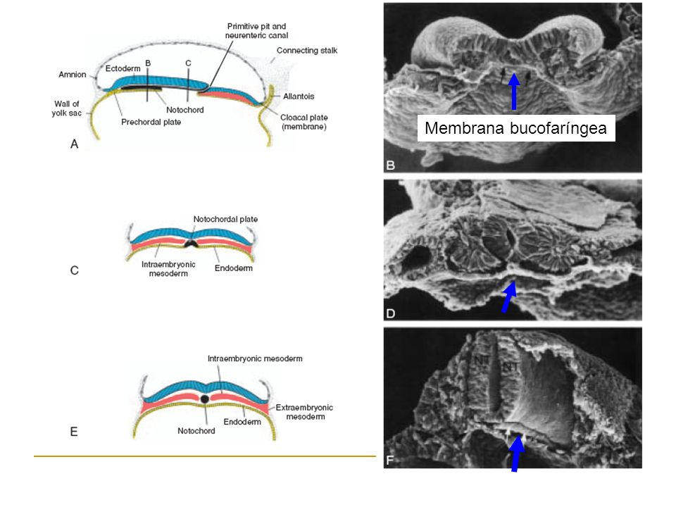 Membrana bucofaríngea