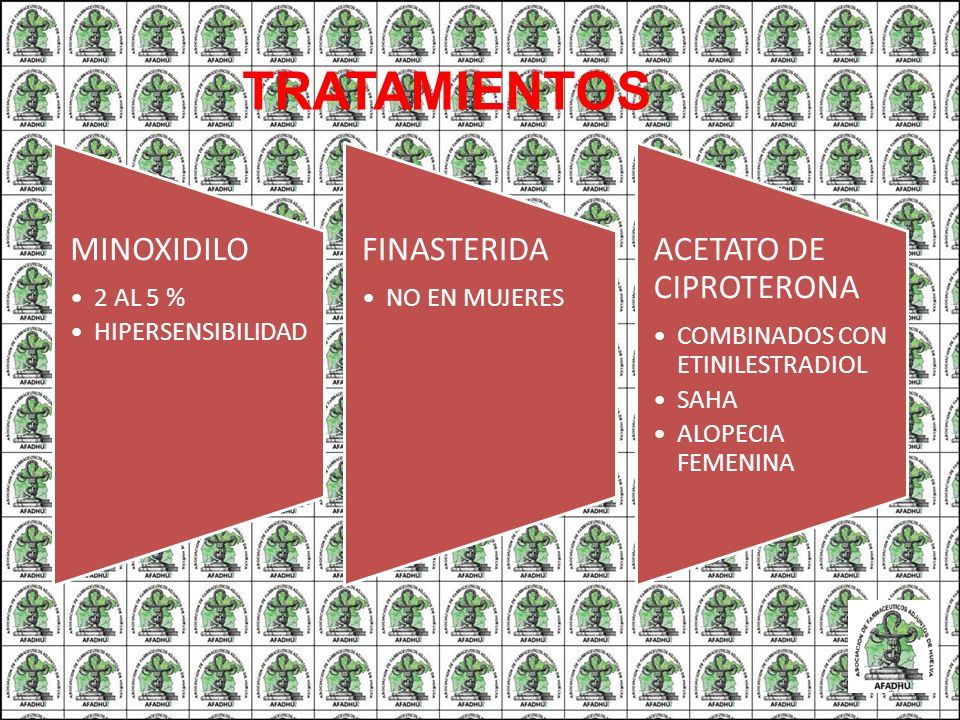 TRATAMIENTOS MINOXIDILO 2 AL 5 % HIPERSENSIBILIDAD FINASTERIDA