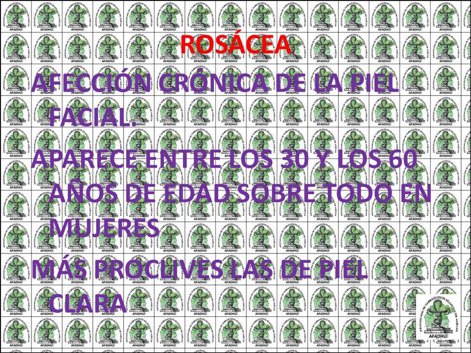 ROSÁCEA AFECCIÓN CRÓNICA DE LA PIEL FACIAL.