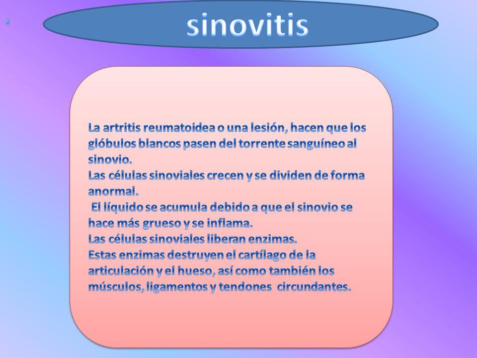 . sinovitis. La artritis reumatoidea o una lesión, hacen que los glóbulos blancos pasen del torrente sanguíneo al sinovio.